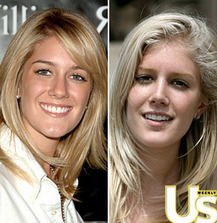 heidi montag before and after 10 surgeries. BEFORE WHY WHY WHY WHY